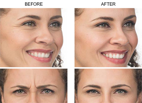 Botox Allergan Before n After Results