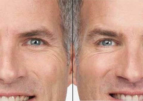 Botox Crows Feet Results
