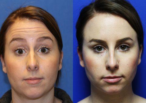 Botox Injectible Results