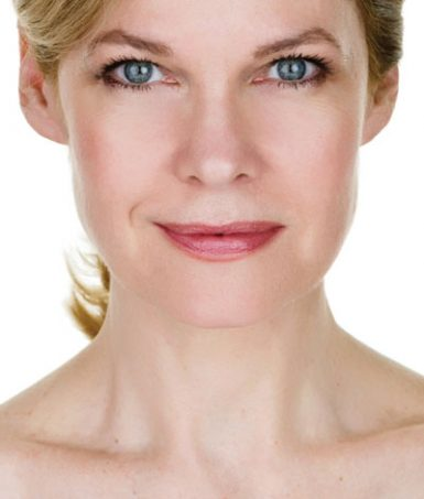 What's TotalFX Laser Resurfacing?