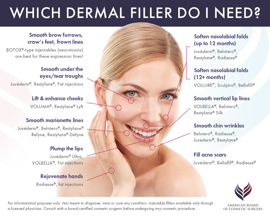 Which Derma Fillers Do I Need?